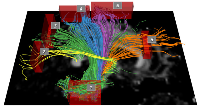 Exploration of the Brain's White Matter Pathways with